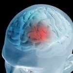 What Are the Signs of Mini Stroke?