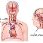 Neck Artery Blockage Symptoms